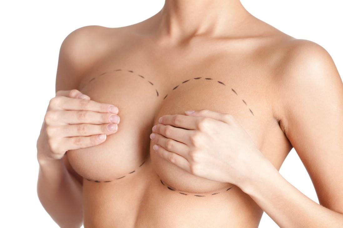 Aprenda a cuidar su mamoplastia